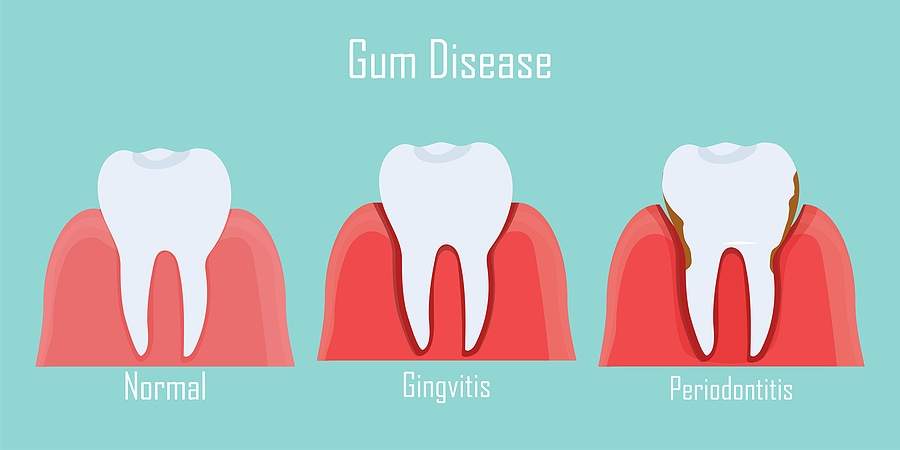 Gingival (Gum) Health & Periodontal Disease